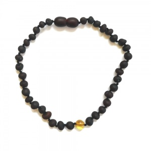 Adult UnPolished Dark Cherry and Honey Amber Anklet